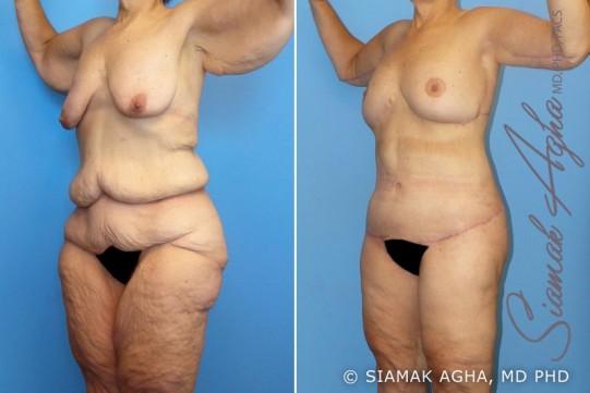 orange-county-total-body-lift-patient-7-front-left