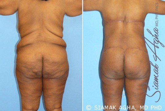 orange-county-total-body-lift-patient-8-back-left