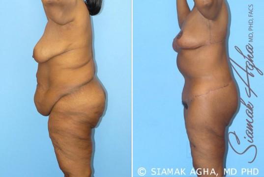orange-county-total-body-lift-patient-8-left