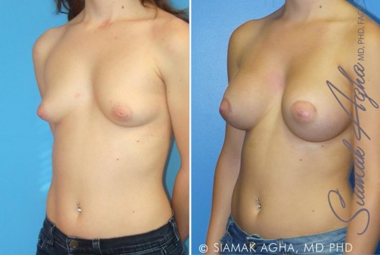 orange-county-tubular-breast-correction-patient-1-front-left (1)