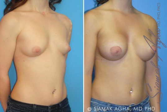 orange-county-tubular-breast-correction-patient-1-front-right (1)
