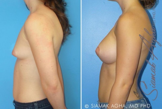 orange-county-tubular-breast-correction-patient-1-left (1)