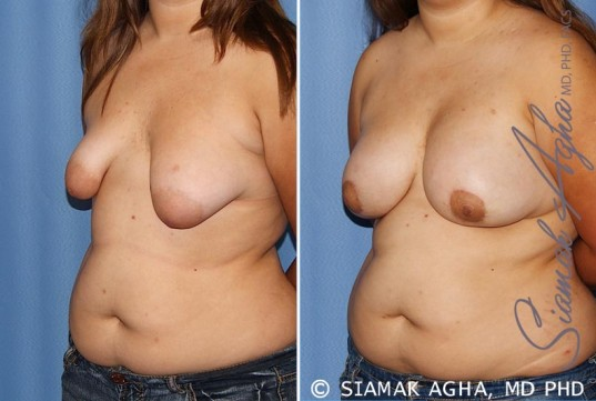 orange-county-tubular-breast-correction-patient-4-front-left
