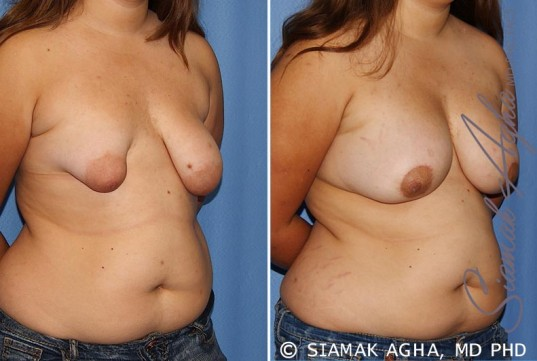 orange-county-tubular-breast-correction-patient-4-front-right
