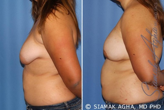 orange-county-tubular-breast-correction-patient-4-left