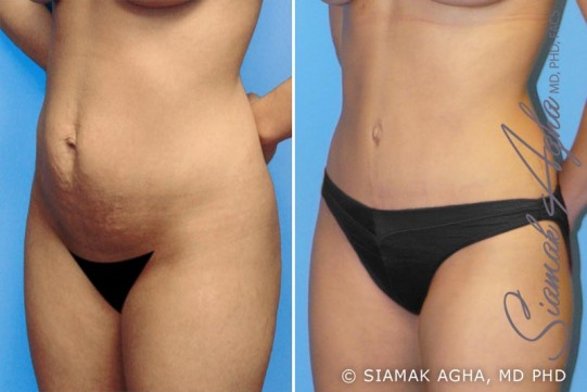 orange-county-tummy-tuck-patient-1-front-left