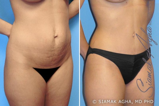 orange-county-tummy-tuck-patient-1-front-right