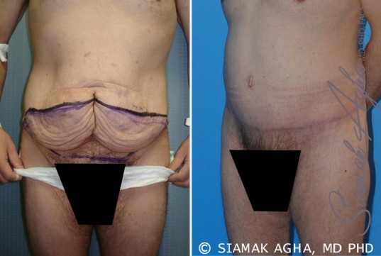orange-county-tummy-tuck-patient-10-front-left