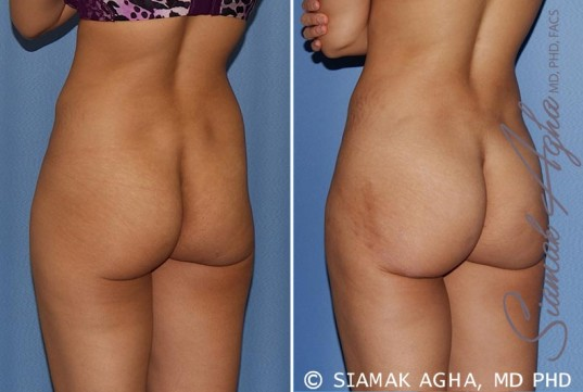 orange-county-tummy-tuck-patient-12-back-left
