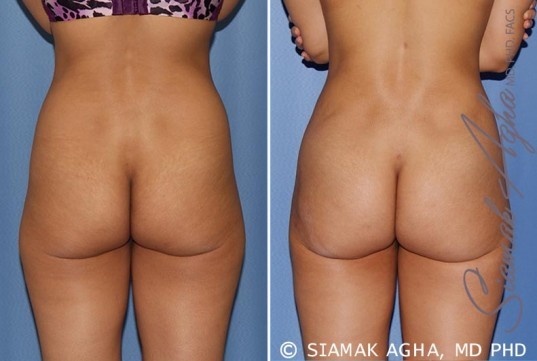 orange-county-tummy-tuck-patient-12-back