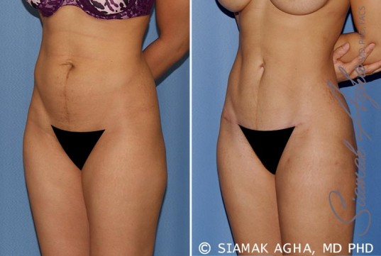 orange-county-tummy-tuck-patient-12-front-left