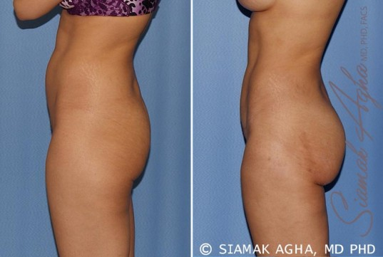orange-county-tummy-tuck-patient-12-left
