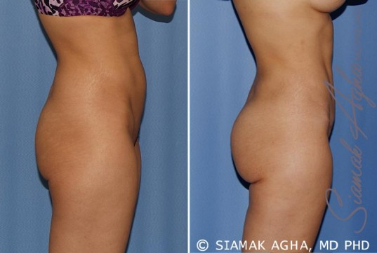 orange-county-tummy-tuck-patient-12-right