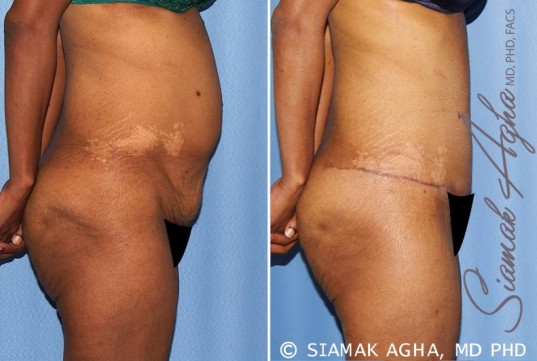 orange-county-tummy-tuck-patient-13-right