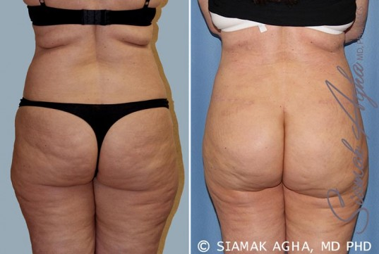 orange-county-tummy-tuck-patient-14-back