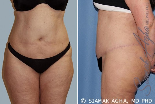 orange-county-tummy-tuck-patient-14-left