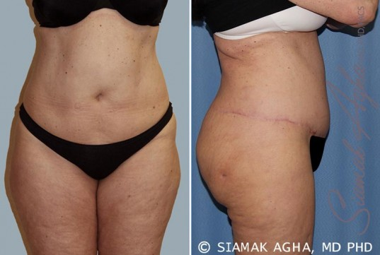 orange-county-tummy-tuck-patient-14-right