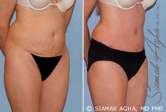 orange-county-tummy-tuck-patient-16-front-right