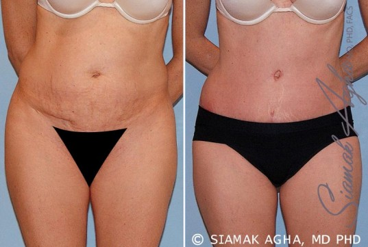 orange-county-tummy-tuck-patient-16-front