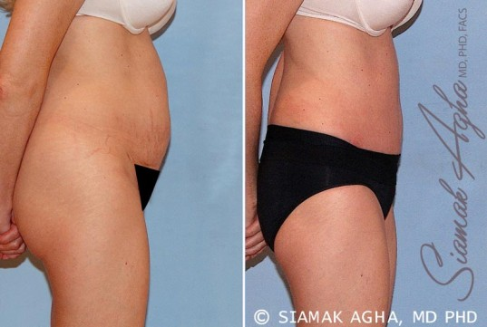 orange-county-tummy-tuck-patient-16-right
