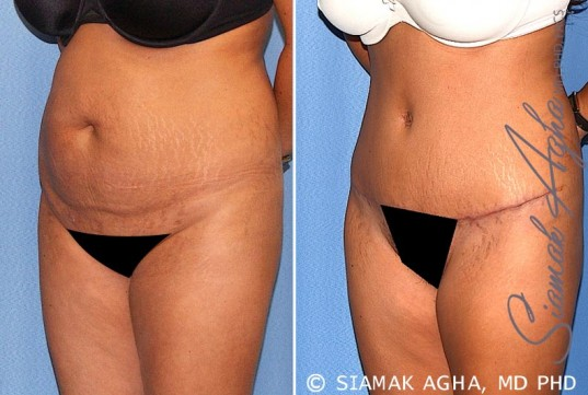 orange-county-tummy-tuck-patient-17-front-left