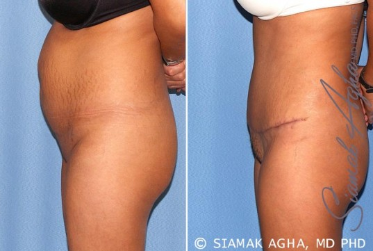 orange-county-tummy-tuck-patient-17-left