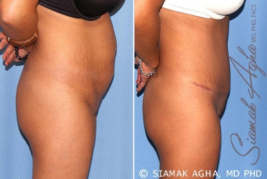 orange-county-tummy-tuck-patient-17-right