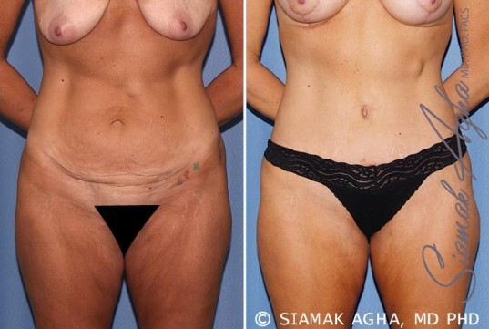 orange-county-tummy-tuck-patient-18-front-1