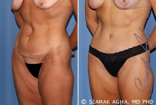 orange-county-tummy-tuck-patient-18-front-left
