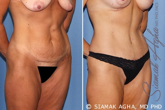 orange-county-tummy-tuck-patient-18-front-right