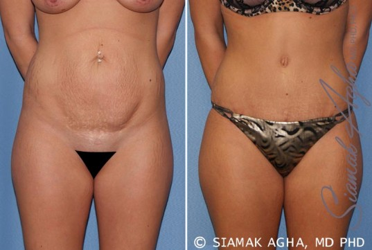 orange-county-tummy-tuck-patient-19-front-1
