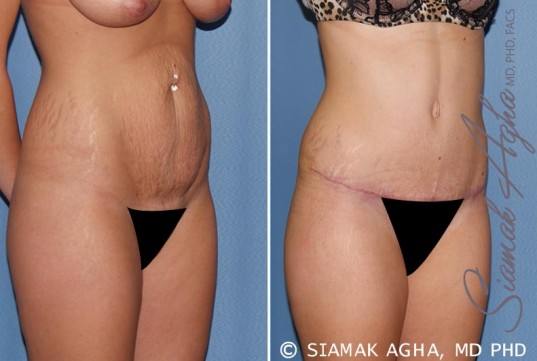 orange-county-tummy-tuck-patient-19-front-right