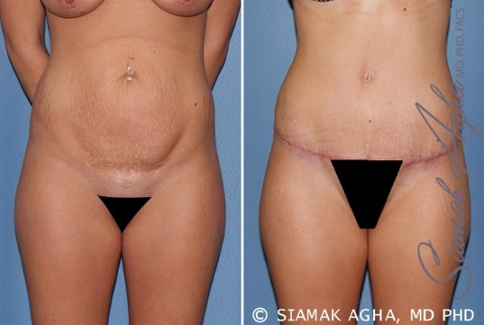 orange-county-tummy-tuck-patient-19-front