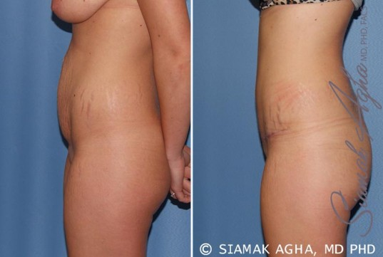 orange-county-tummy-tuck-patient-19-left