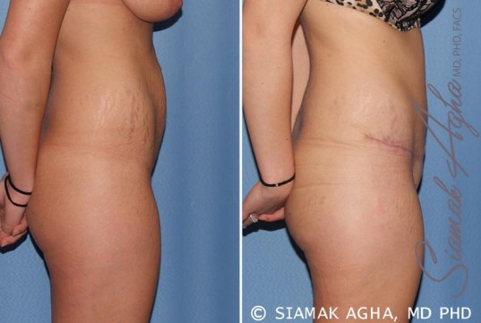 orange-county-tummy-tuck-patient-19-right