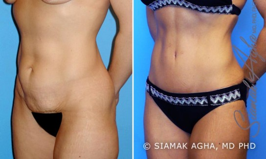 orange-county-tummy-tuck-patient-2-front-left