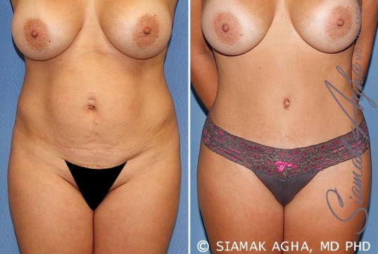 orange-county-tummy-tuck-patient-20-front-1