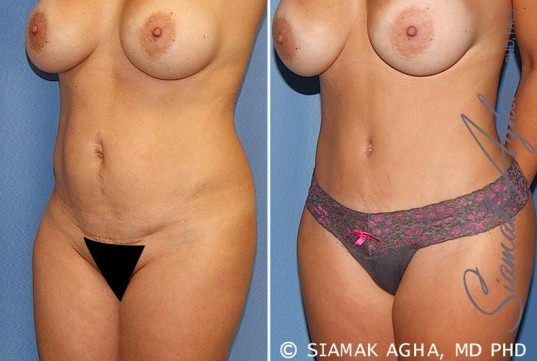 orange-county-tummy-tuck-patient-20-front-left