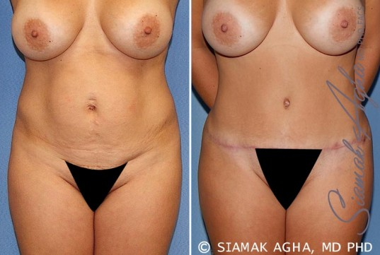 orange-county-tummy-tuck-patient-20-front