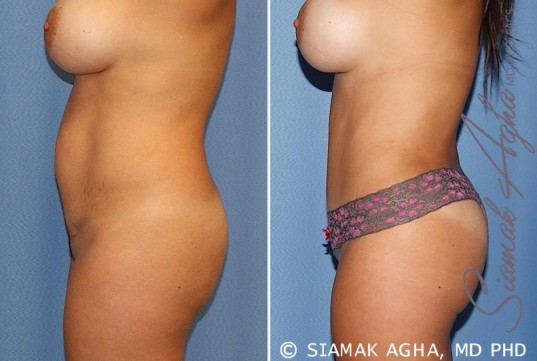 orange-county-tummy-tuck-patient-20-left