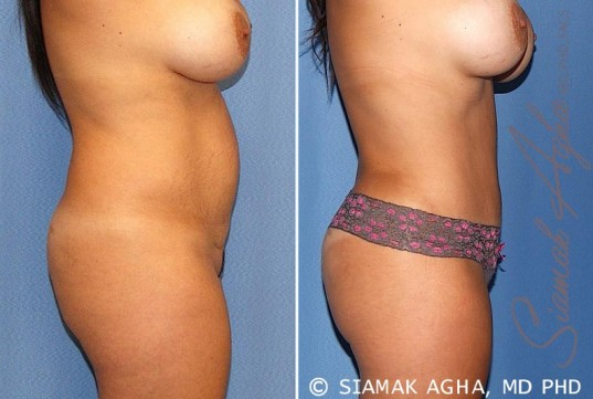 orange-county-tummy-tuck-patient-20-right