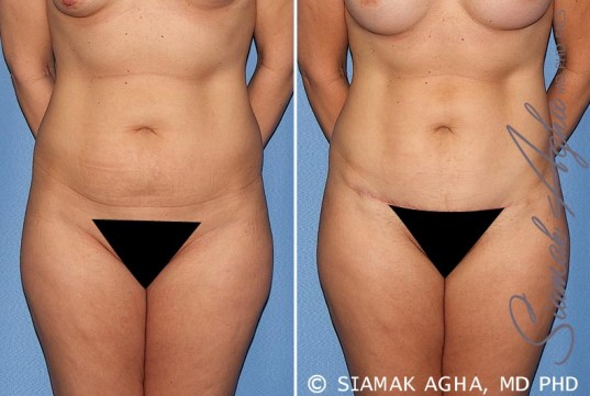 orange-county-tummy-tuck-patient-22-front