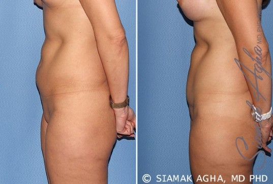 orange-county-tummy-tuck-patient-22-left