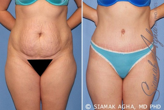 orange-county-tummy-tuck-patient-23-front-1