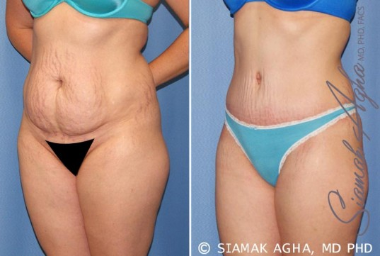 orange-county-tummy-tuck-patient-23-front-left-1