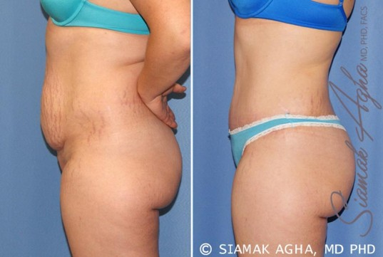 orange-county-tummy-tuck-patient-23-left-1