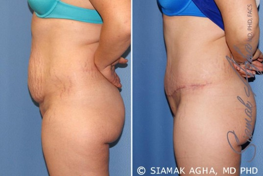 orange-county-tummy-tuck-patient-23-left