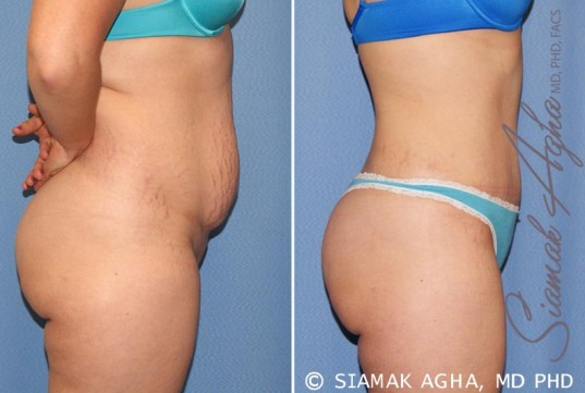 orange-county-tummy-tuck-patient-23-right-1