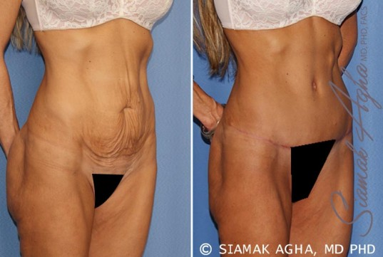 orange-county-tummy-tuck-patient-24-front-right