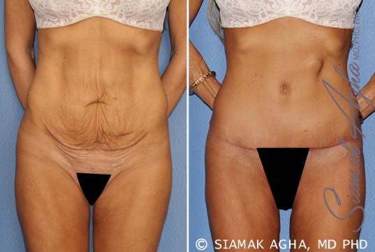 orange-county-tummy-tuck-patient-24-front